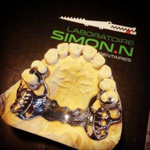 Soustraitancestellite, chassismetallique, dent, stellite,simon.n, laboratoiresimonn.fr, nicolassimon,prothesedentaire,sous traitant,madeinfrance